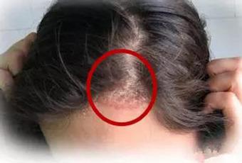什麼人容易有頭皮銀屑病導致就醫的皮膚症狀